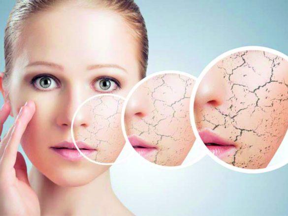 Как устранить сухость кожи?